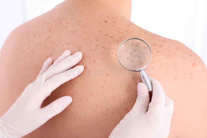 Dermatolog egzamininuje pacjenta z powiększać - szkło w klinice fotografia stock