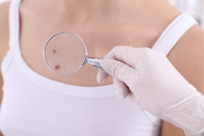 Dermatolog egzamininuje pacjenta z powiększać - szkło w klinice obraz royalty free