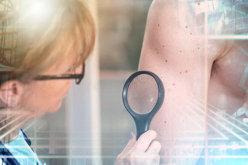 Dermatolog egzamininuje skórę pacjent; wieloskładnikowy ujawnienie zdjęcie royalty free
