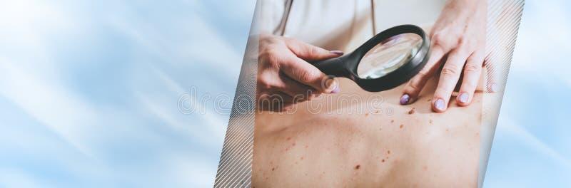 Dermatolog egzamininuje sk?r? pacjent; panoramiczny sztandar zdjęcie stock