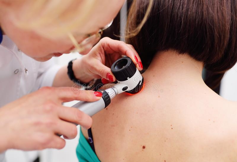 Dermatolog egzamininuje trądzika pacjent z dermatoscope lub gramocząsteczki obrazy stock