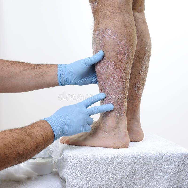 Dermatolog odwiedza dorosłego mężczyzna z łuszczycą w nogach zdjęcie stock