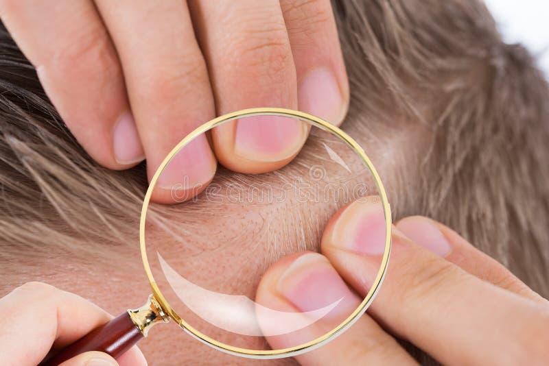 Dermatolog Sprawdza Cierpliwego ` s włosy fotografia royalty free