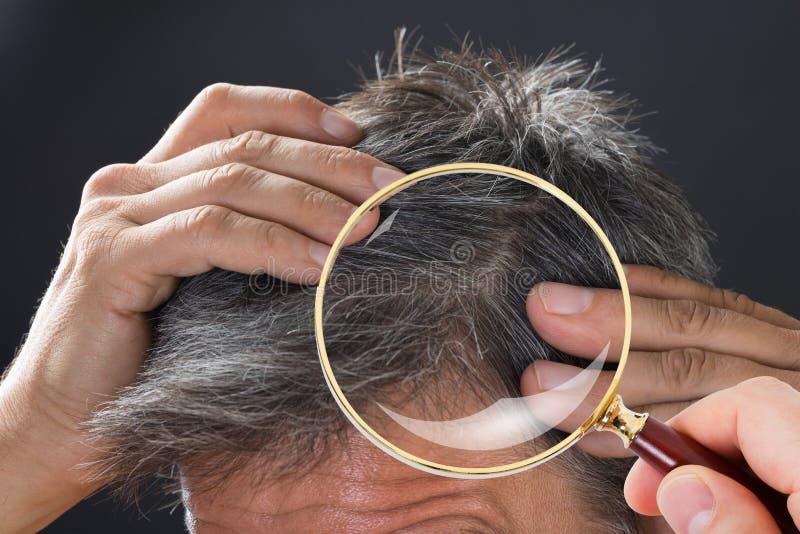 Dermatolog Sprawdza Cierpliwego ` s włosy zdjęcie royalty free