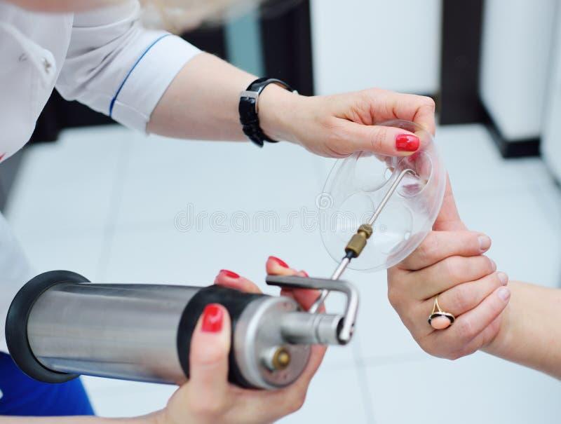 Dermatolog usuwa brodawkę na cierpliwym ` s palcu fotografia stock