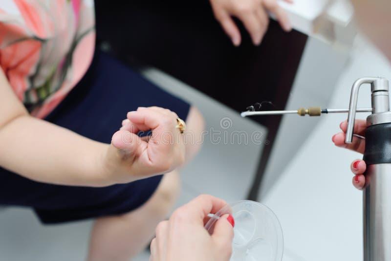 Dermatolog usuwa brodawkę na cierpliwym ` s palcu zdjęcia royalty free