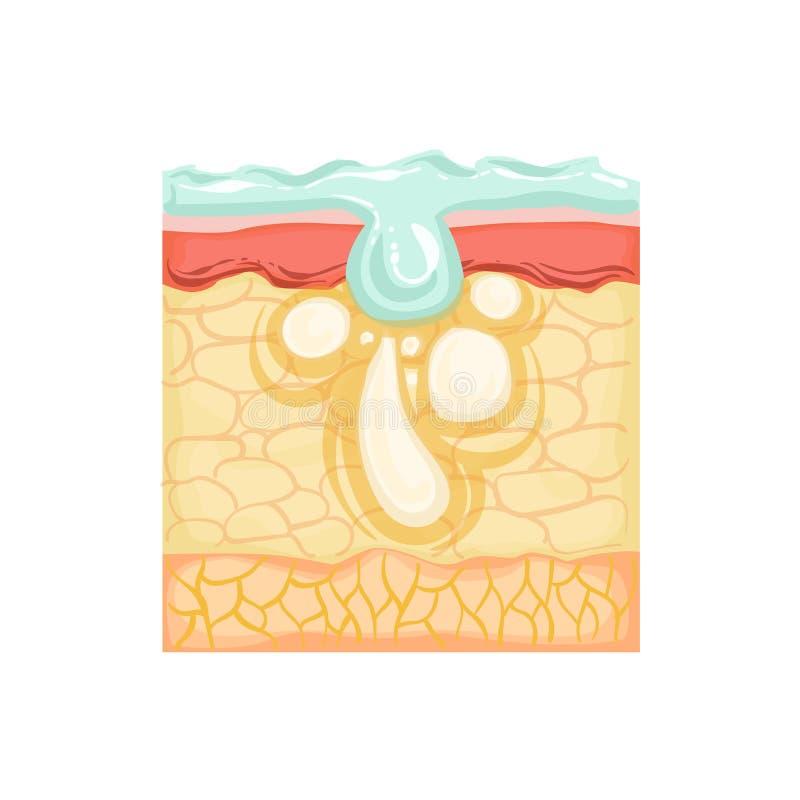 Dermatologii Skincare Anatomiczna Ewidencyjna ilustracja Demonstruje skóra problemu traktowanie Z Specjalnymi Płuczkowymi produkt ilustracji