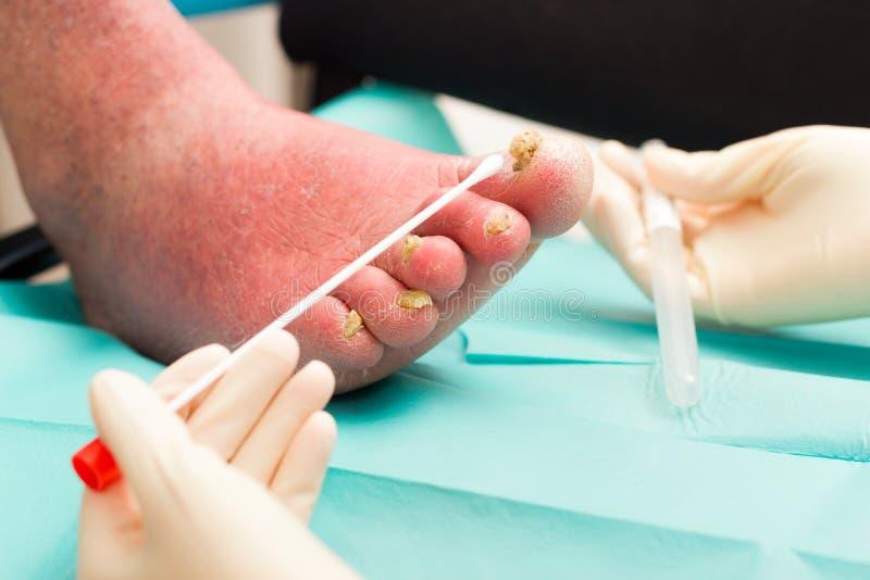 Dermatologisk undersökning på det Arteriosclerotical benet med spikar F arkivfoton