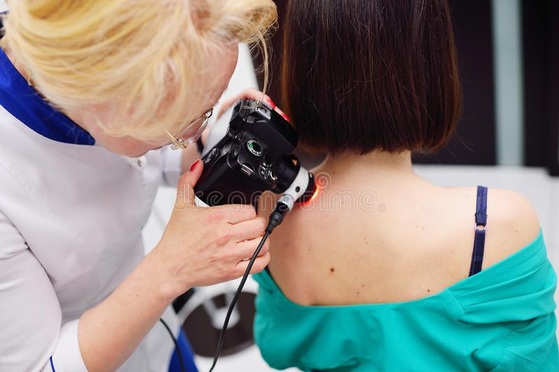 The dermatologist examines the moles or acne of the patient with a dermatoscope stock photos