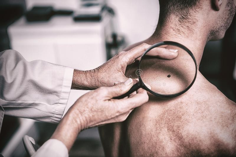 Dermatologist examining mole with magnifying glass. In clinic stock images