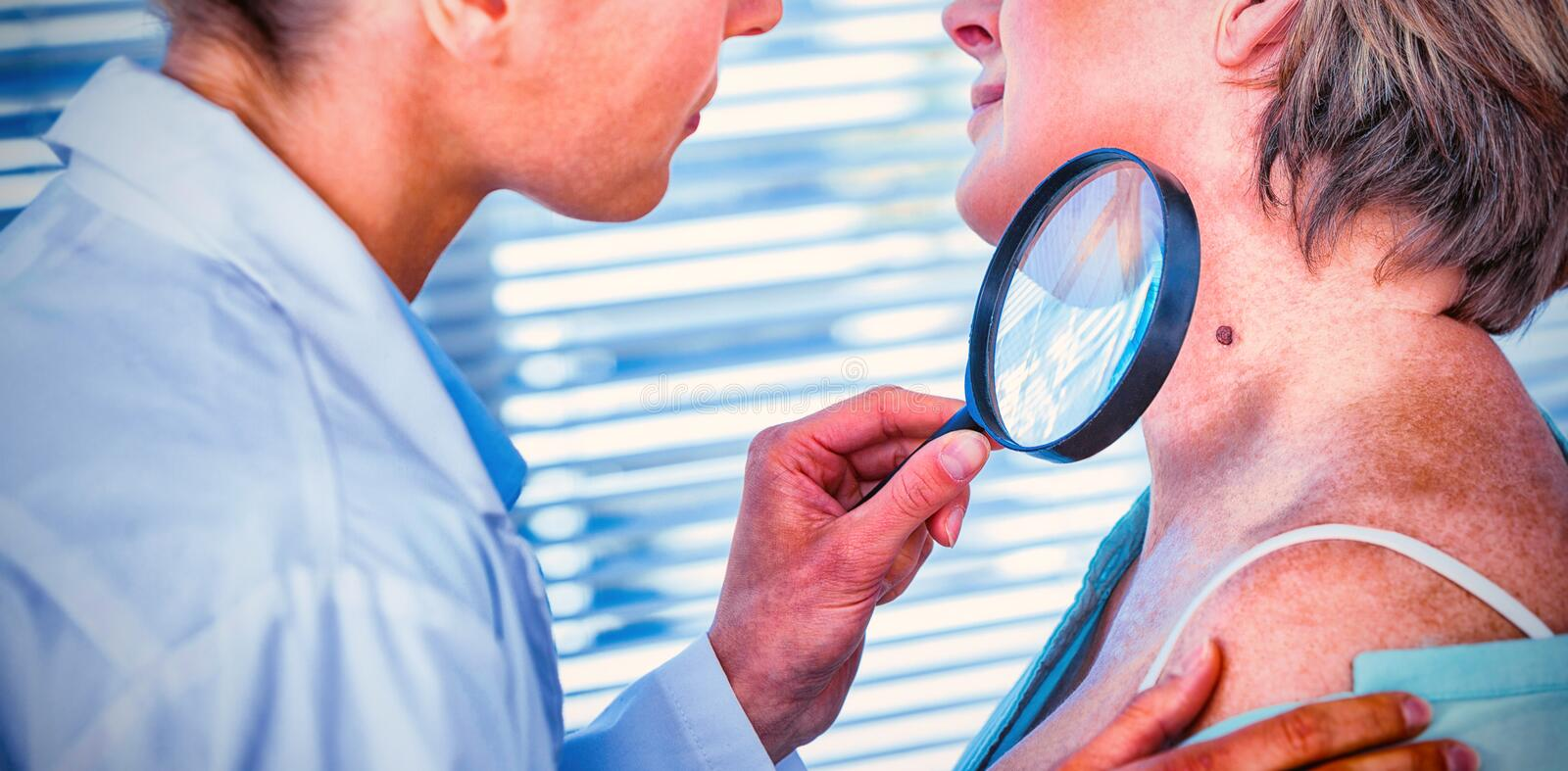 Dermatologist examining mole with magnifying glass. In clinic stock photo