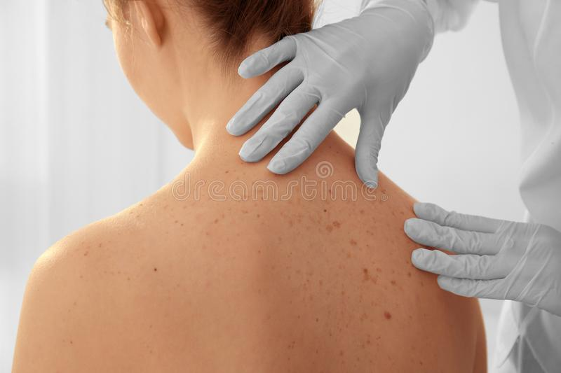 Dermatologist examining patient in clinic, closeup royalty free stock images