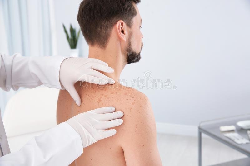 Dermatologist examining patient`s birthmark. In clinic royalty free stock image