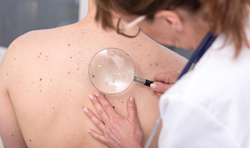 Dermatologista que examina a pele de um paciente imagem de stock royalty free