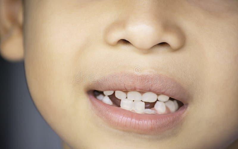 Des dents de lait sont juste lâchées dans la bouche et la dent régénérée photographie stock