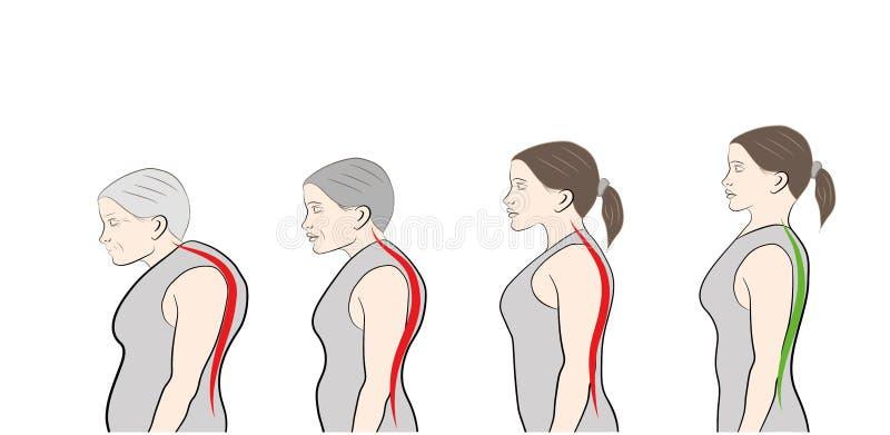 Desarrollo de una postura inclinada con edad, mostrando stock de ilustración