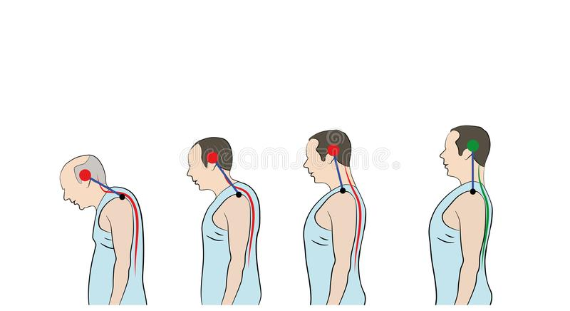 Desarrollo de una postura inclinada con edad, mostrando la curvatura cada vez mayor de la espina dorsal libre illustration