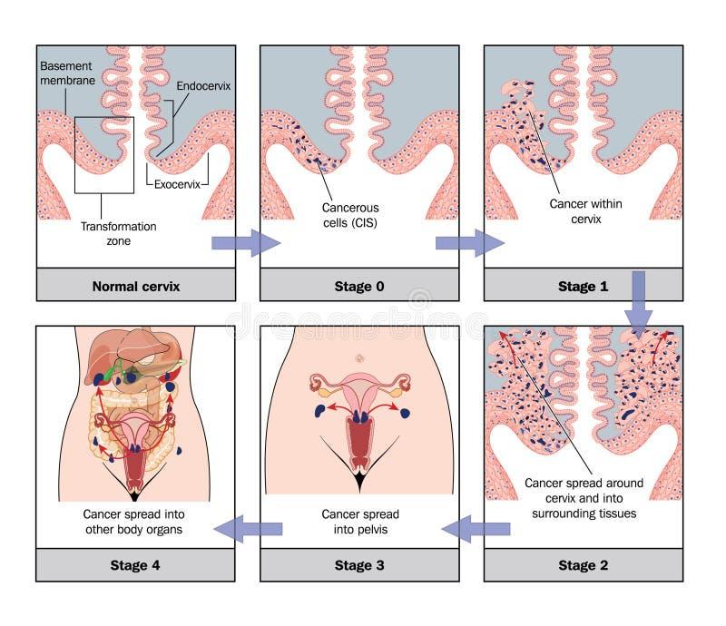 Desarrollo del cáncer de cuello del útero ilustración del vector