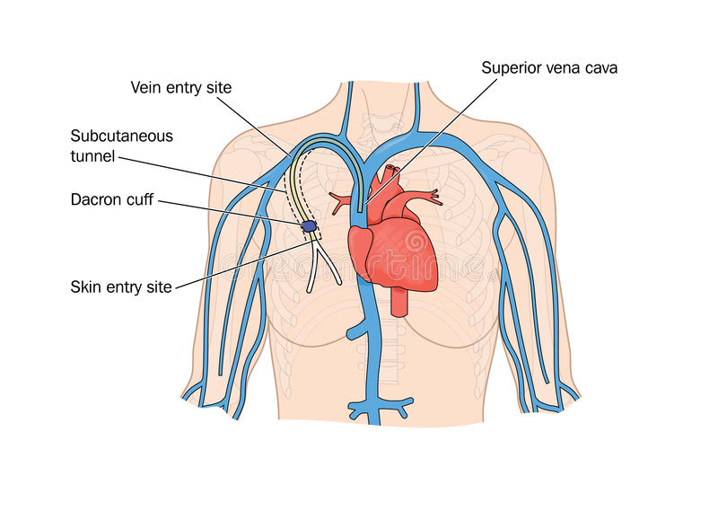 Desenho da inserção do cateter no coração ilustração royalty free