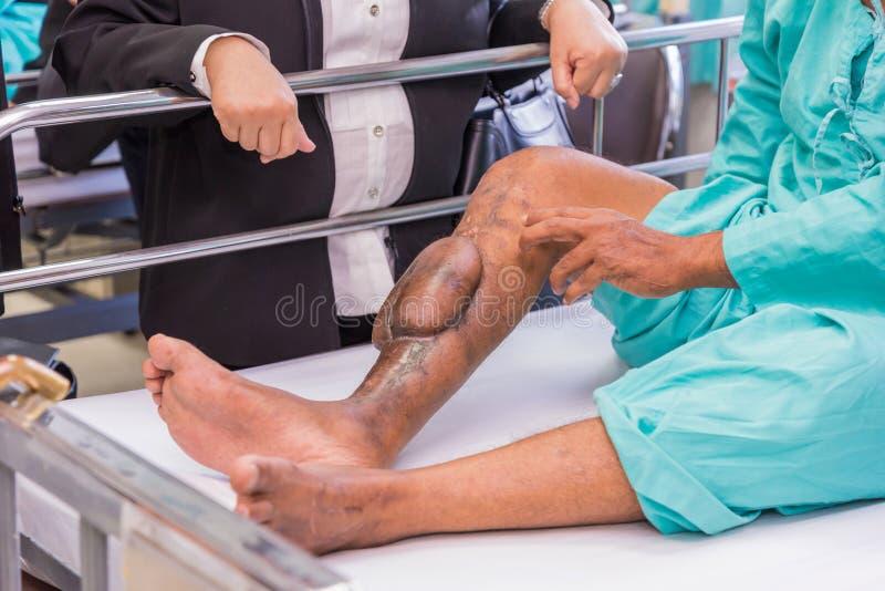deshuese la pierna de las cicatrices militares del escalonamiento en una mina fotos de archivo