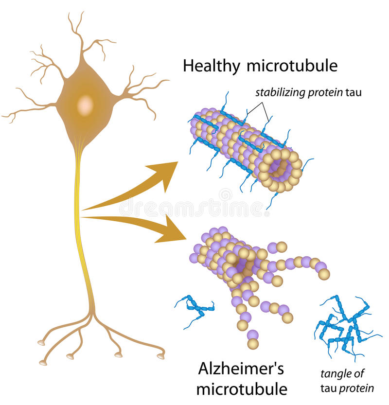 Desintegrera microtubules i den Alzheimer sjukdomen vektor illustrationer