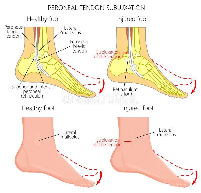 Deslocação Peroneal do tendão de Injuries_Peroneal do tendão ilustração stock