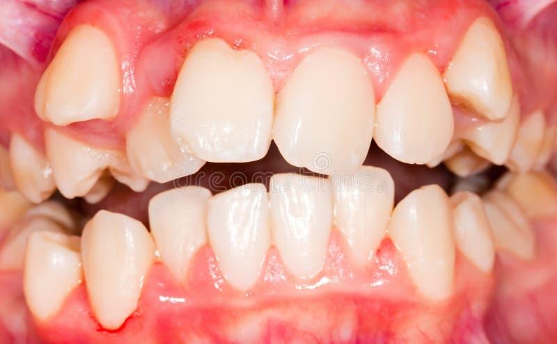 Deslocamento dental imagem de stock