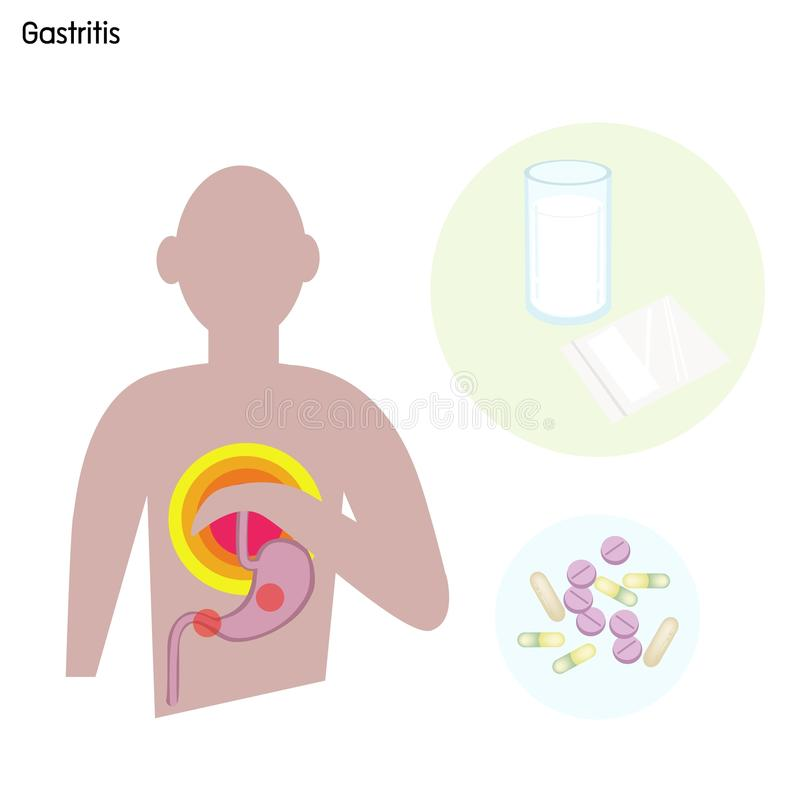 Desorden o gastritis del estómago con el tratamiento médico stock de ilustración