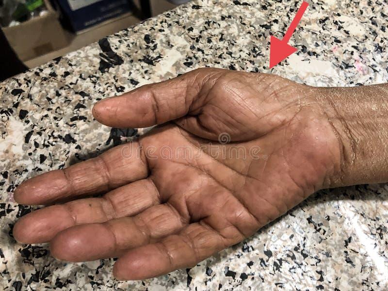 Desperdício ou atrofia dos músculos Thenar de asiático, paciente idoso fêmea da palma da eminência do birmanês Causado pela síndr foto de stock