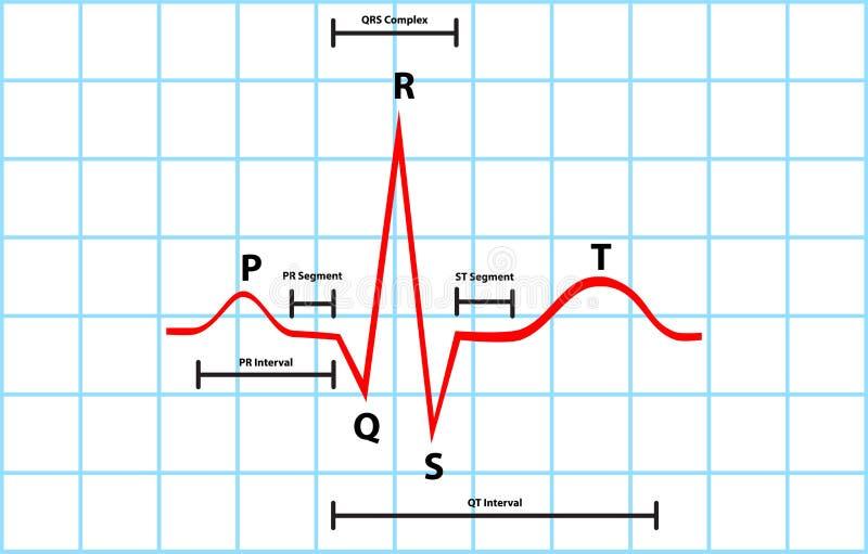 Despolarização Atrial e ventricular normal com  ilustração stock