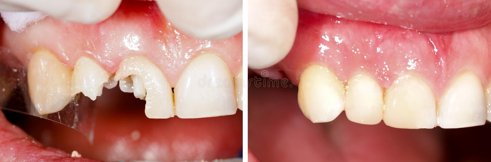 Destructed teeth filling royalty free stock photos