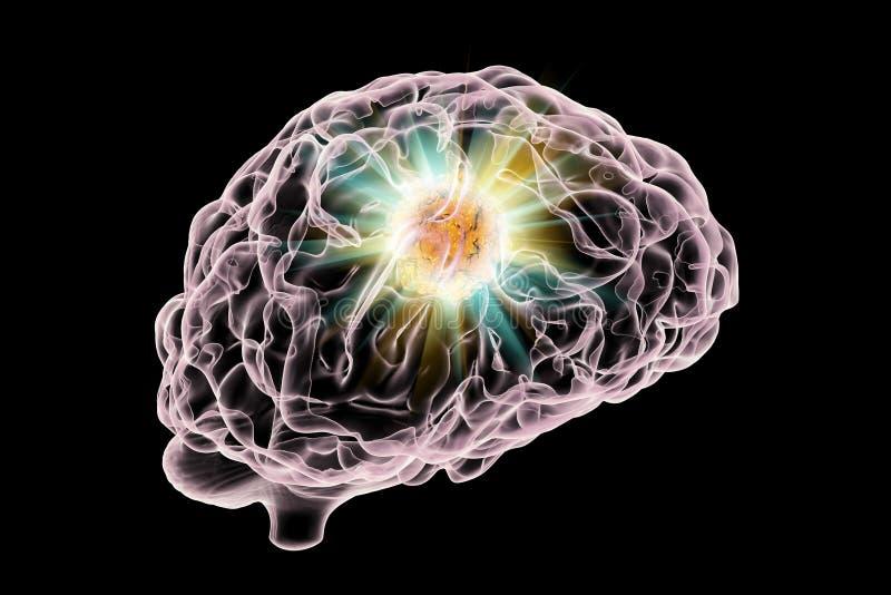 Destruição do tumor cerebral ilustração stock