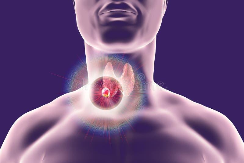 Destruição do tumor do tiroide ilustração do vetor