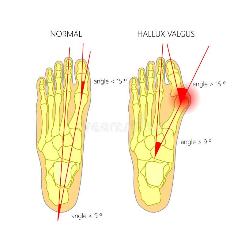 Desviación normal del pie y del valgus del primer dedo del pie con indicatin stock de ilustración