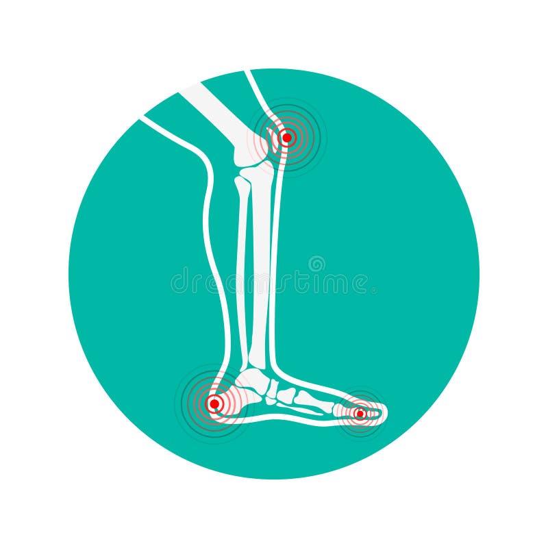 Det mänskliga benet smärtar zoner Designbeståndsdelar för infographic stock illustrationer