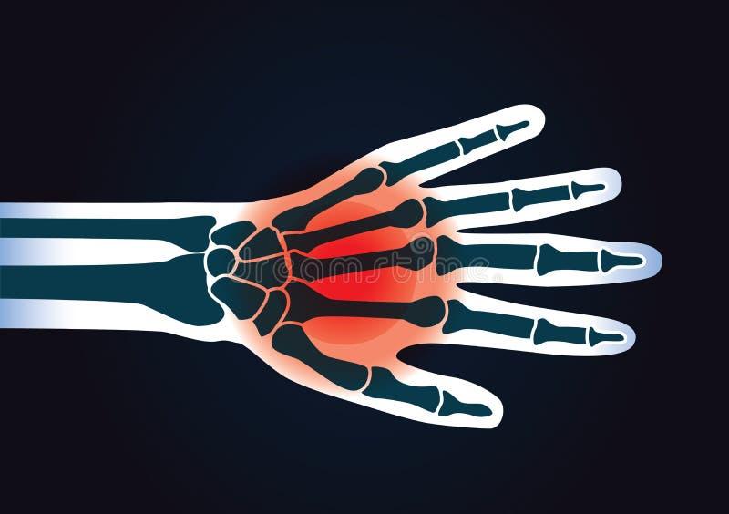Det mänskliga handbenet har en röd signal vektor illustrationer