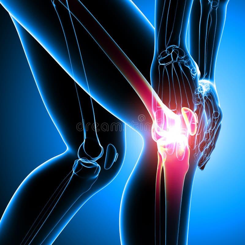 Det mänskliga knäet smärtar royaltyfri illustrationer