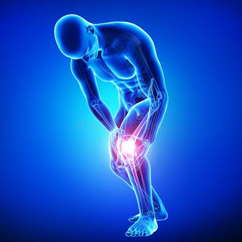 Det manliga knäet smärtar royaltyfri illustrationer