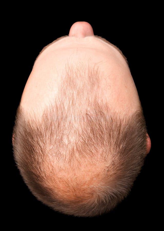 det skalliga snittet head ut royaltyfri fotografi