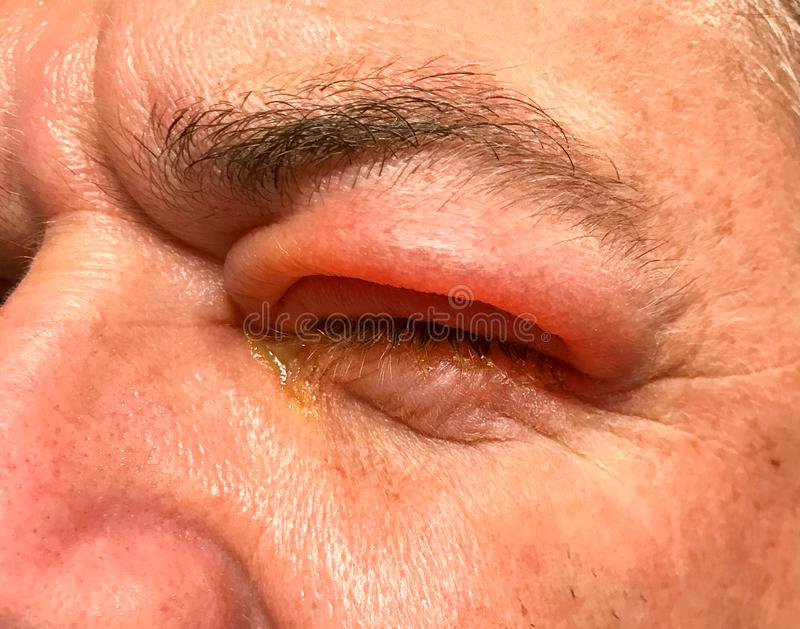 Detail of badly swollen upper eyelid of a man stock images