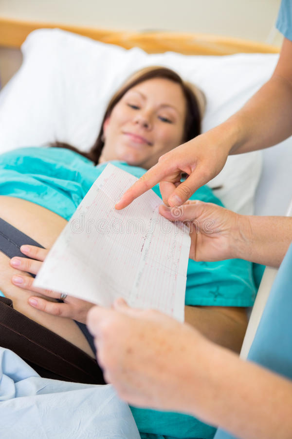 Detail of Fetal Monitor Graph stock photography