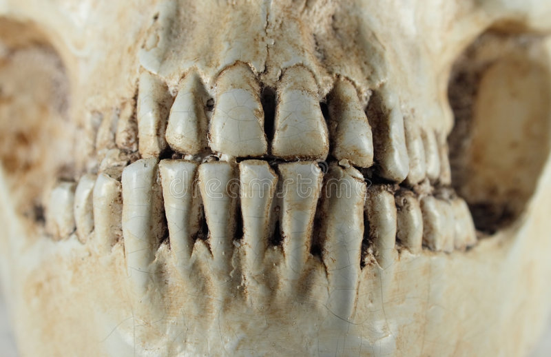 Detail of human skull. And tooth stock photos