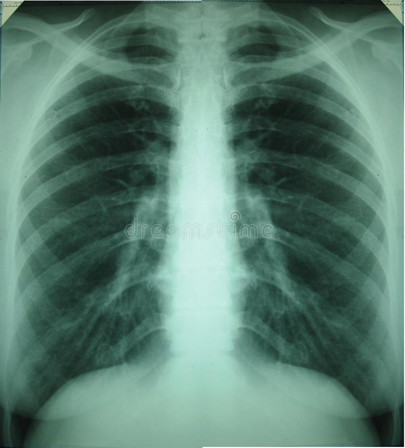 Detail of an x-ray of lungs royalty free stock image