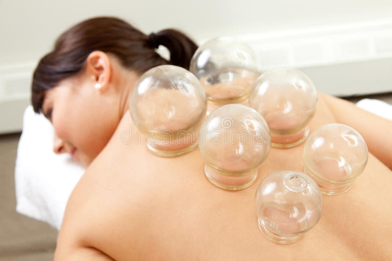 Detail of Woman with Acupuncture Cupping Treatment stock photos