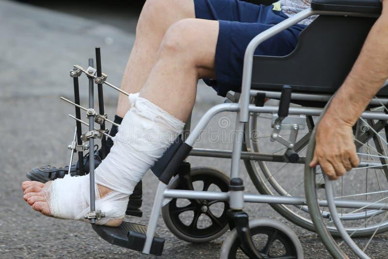 Details van een man's verbonden been met metaal orthopedische staven stock afbeelding