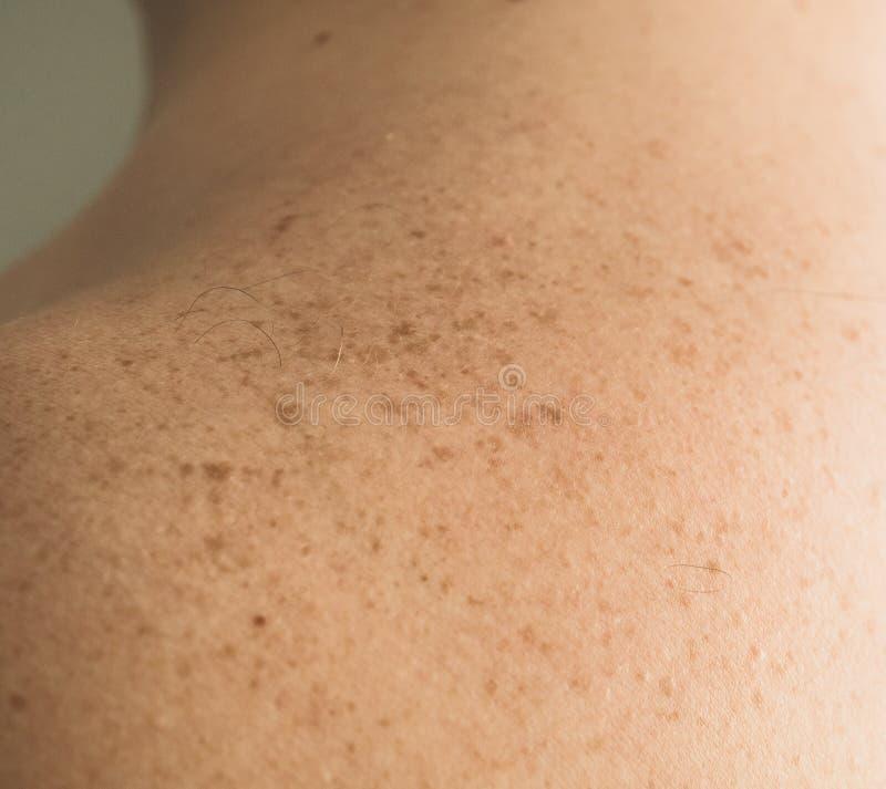 Detalhe ascendente próximo da pele desencapada em um homem para trás com toupeiras e as sardas dispersadas Verificando toupeiras  imagem de stock royalty free
