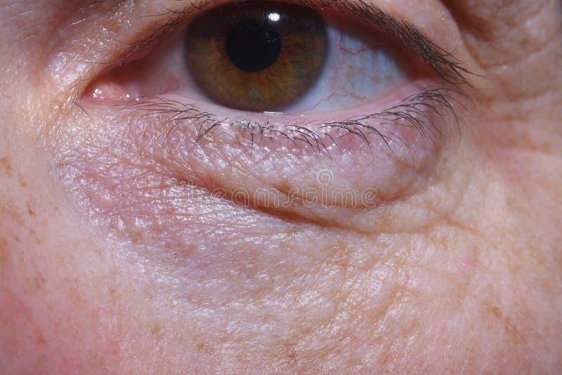 Detalhe de sacos do olho e enrugamentos de uma mulher de meia idade fotos de stock