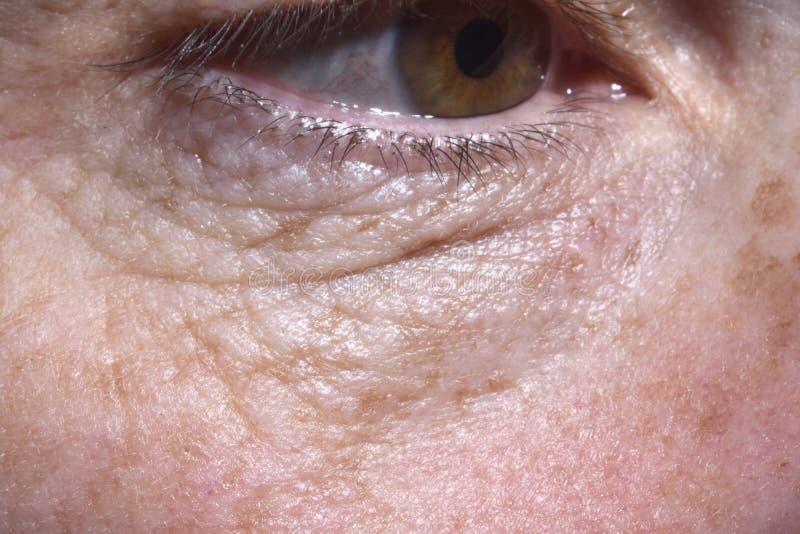 Detalhe de sacos do olho e enrugamentos de uma mulher de meia idade imagens de stock