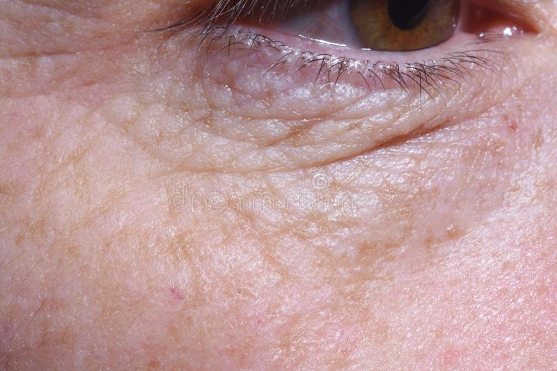 Detalhe de sacos do olho e enrugamentos de uma mulher de meia idade imagem de stock royalty free