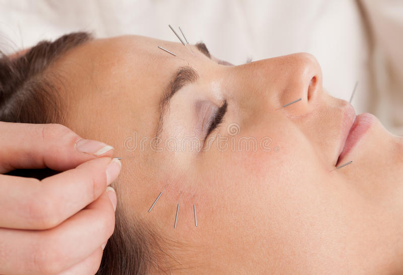 Detalhe facial do tratamento da acupunctura fotografia de stock royalty free
